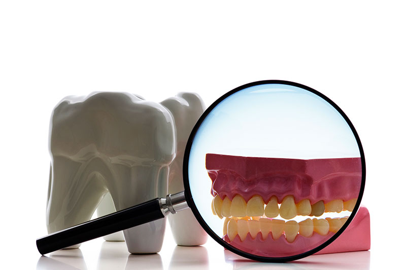 Root Canal - Prism Dental Group, Thousand Oaks Dentist